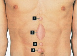 Sites of umbilical hernias