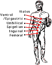Positions of hernias in the body